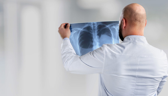 Arzt mit Röntgenbild in der Hand © BillionPhotos.com, stock.adobe.com